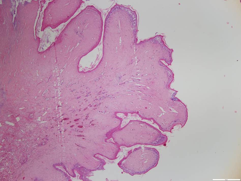 Fig. 2. External papilloma from a green sea turtle (Chelonia mydas) that stranded in Chaguaramas (Case 1). Characteristic stromal and epidermal hyperplasia, with fibroblast proliferation and zones of cytoplasmic vacuolation of epithelial cells are evident. Hematoxylin and Eosin x4.